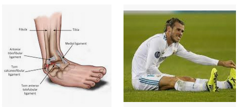 cedera engkel pemain bola