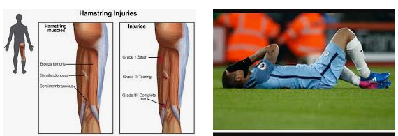 cedera hamstring pemain bola